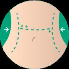 Pós-Operatório de Cirurgia Plástica