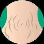 Estrias